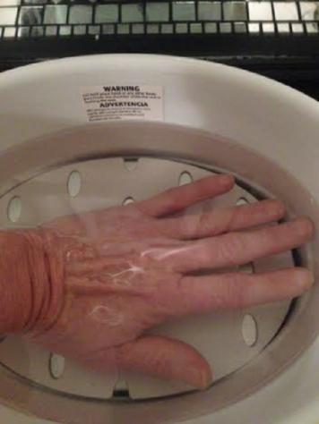 Dipping hand in wax bath