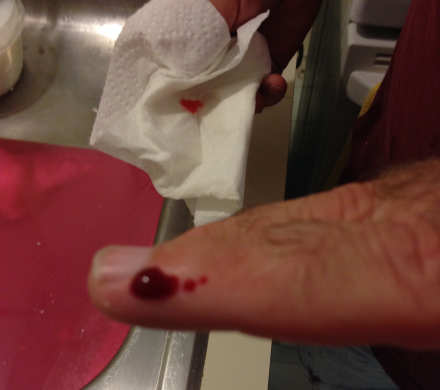 Tile Removal Bloody Finger
